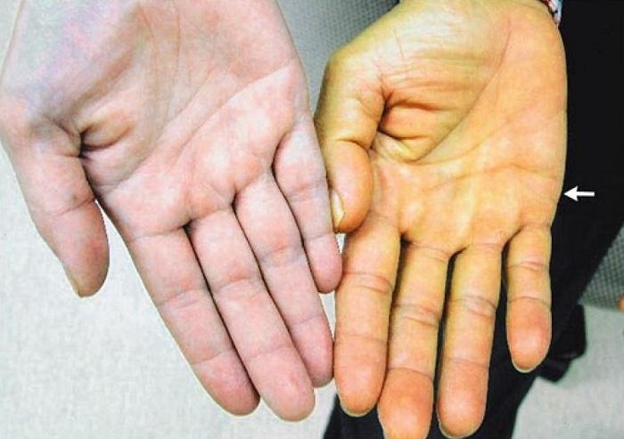 Vàng da - triệu chứng thường trực của hội chứng Gillbert