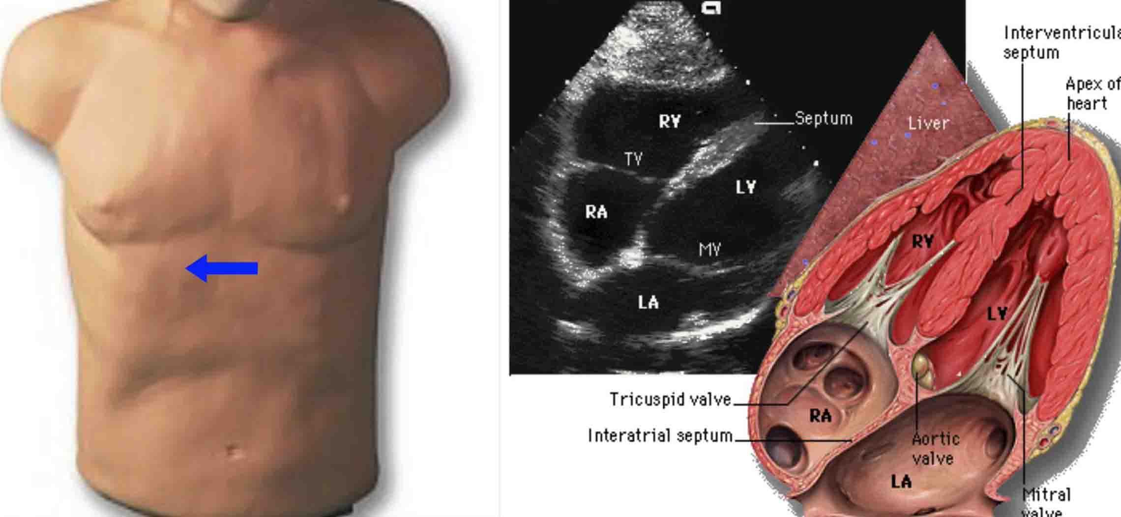 02. Giải phẫu tim người trưởng thành ứng dụng siêu âm Doppler – TS. Tô Thanh Lịch