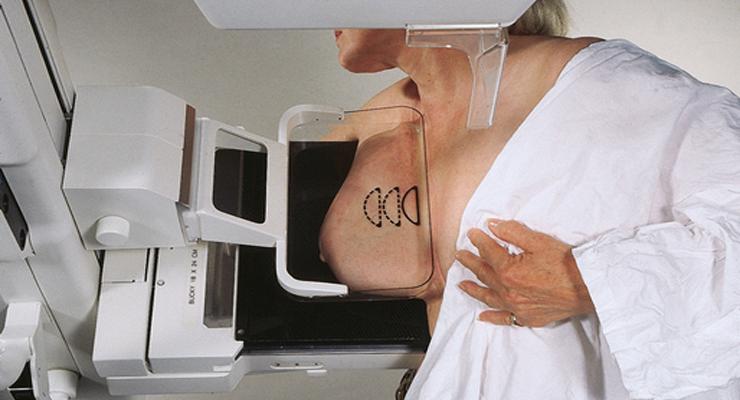 X quang vú: tư thế chụp chếch (MLO)
