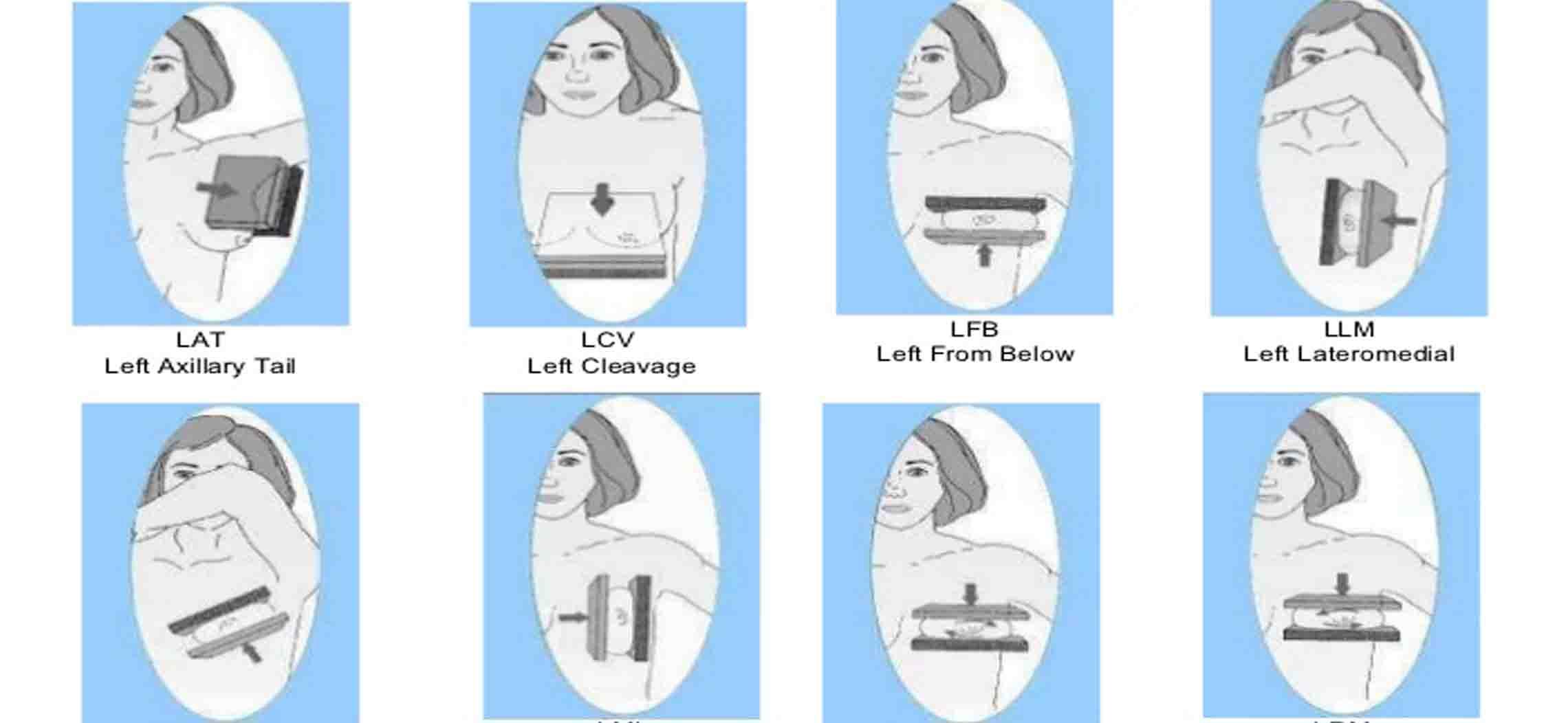 Liệt kê các tư thế và phương pháp chụp x quang vú