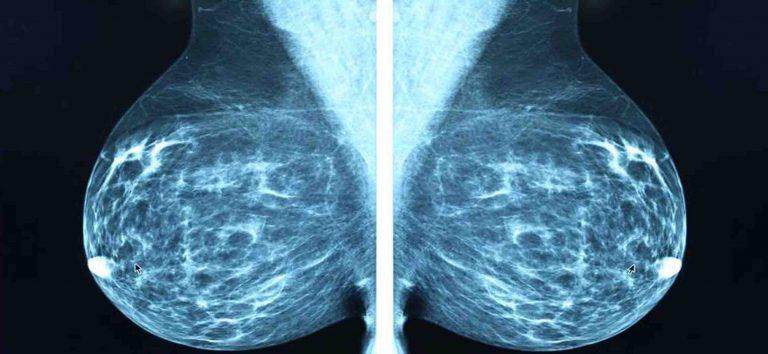 CDC – X-quang tuyến vú (Nhũ ảnh – Mammography)