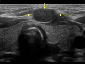 Chẩn đoán các khối u vùng cổ – TS. Bùi Văn Giang (2000)