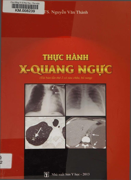 [PDF] Thực hành X-quang ngực