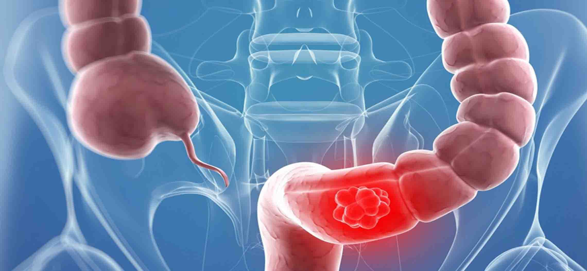 CEA – dấu ấn ung thư đại trực tràng