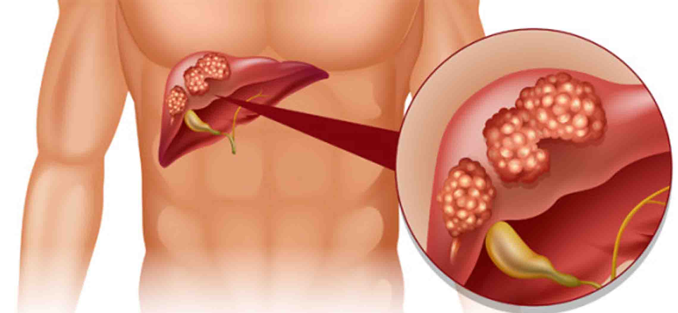 AFP – Dấu ấn ung thư gan nguyên phát