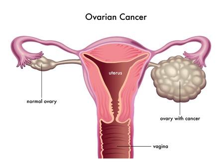 CA 12-5 – dấu ấn ung thư buồng trứng