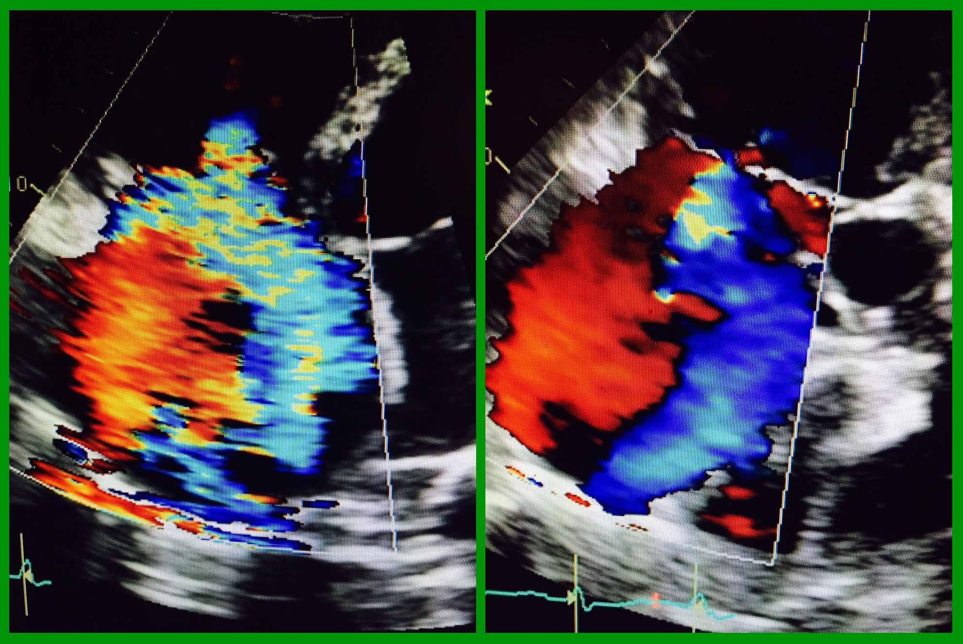 Thông số tối ưu hóa hình ảnh trong siêu âm Doppler màu (Color Doppler)