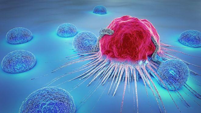 Cảnh báo 11 dấu hiệu có thể là biểu hiện sớm của bệnh ung thư