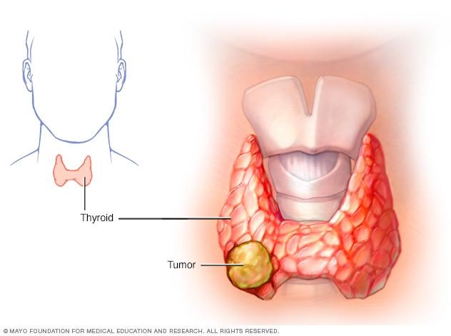 Ung thư tuyến giáp có thể được chẩn đoán sớm không ?