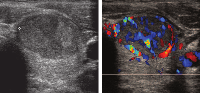 Role-of-color-Doppler-US-a-Transverse-gray-scale-image-of-predominantly-solid-thyroid