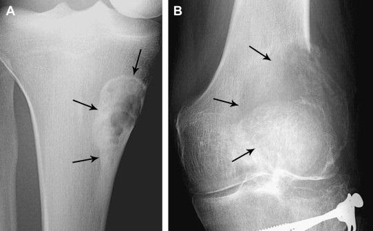 XQuang – phương pháp chẩn đoán hình ảnh nhanh chóng, không đau.