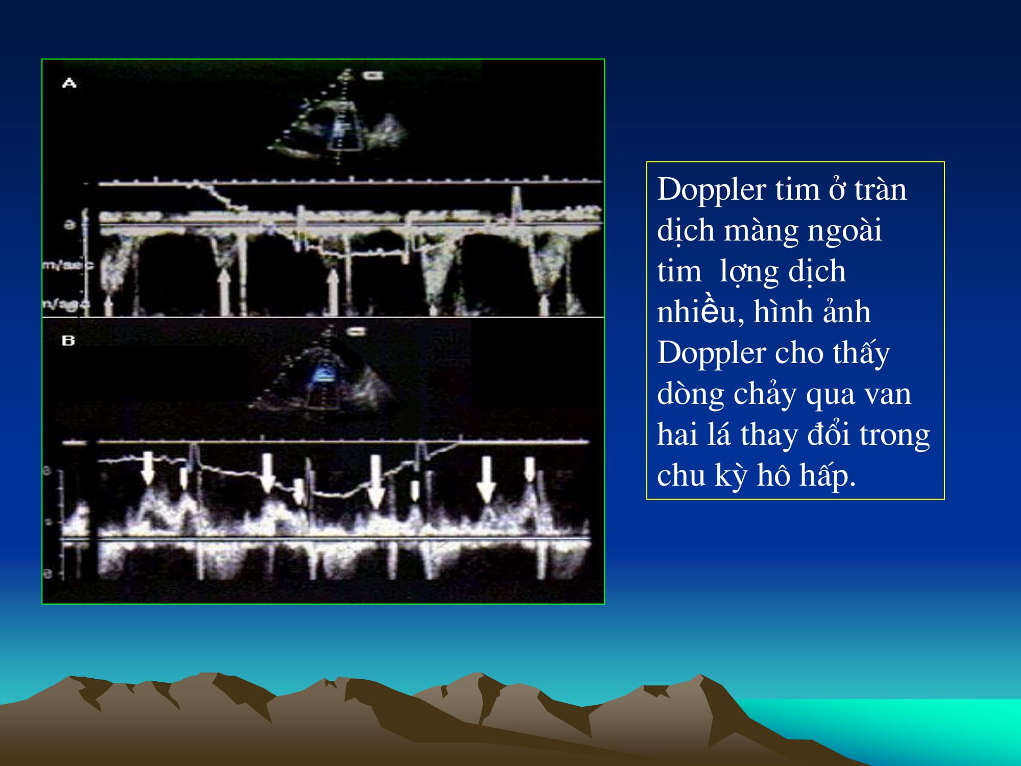 Siêu âm Doppler màu bệnh lý màng ngoài tim – TS. Tạ Mạnh Cường