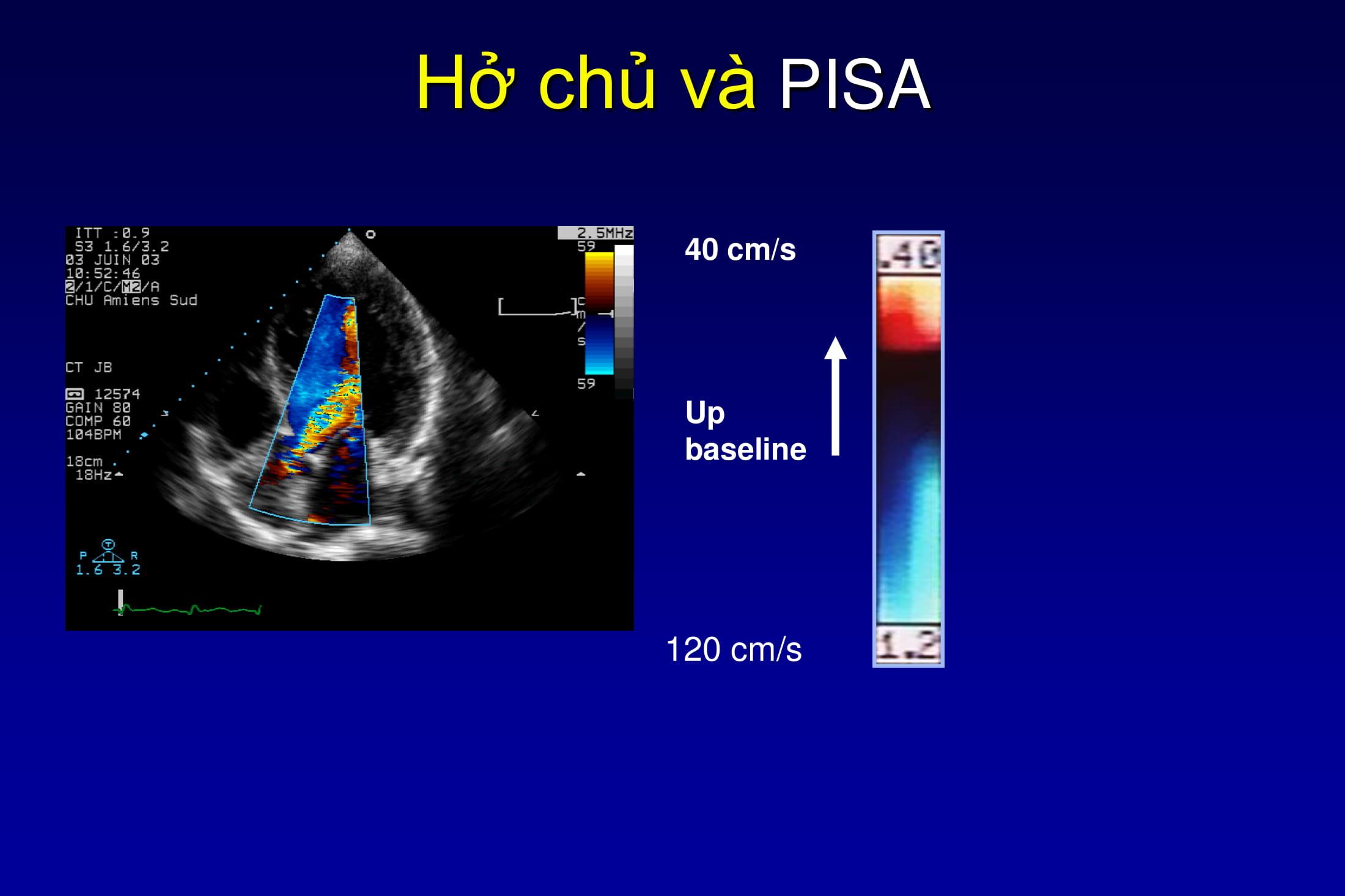 Đánh giá hở van động mạch chủ bằng siêu âm Doppler màu – PGS. Đinh Thu Hương, Viện Tim Mạch Quốc gia