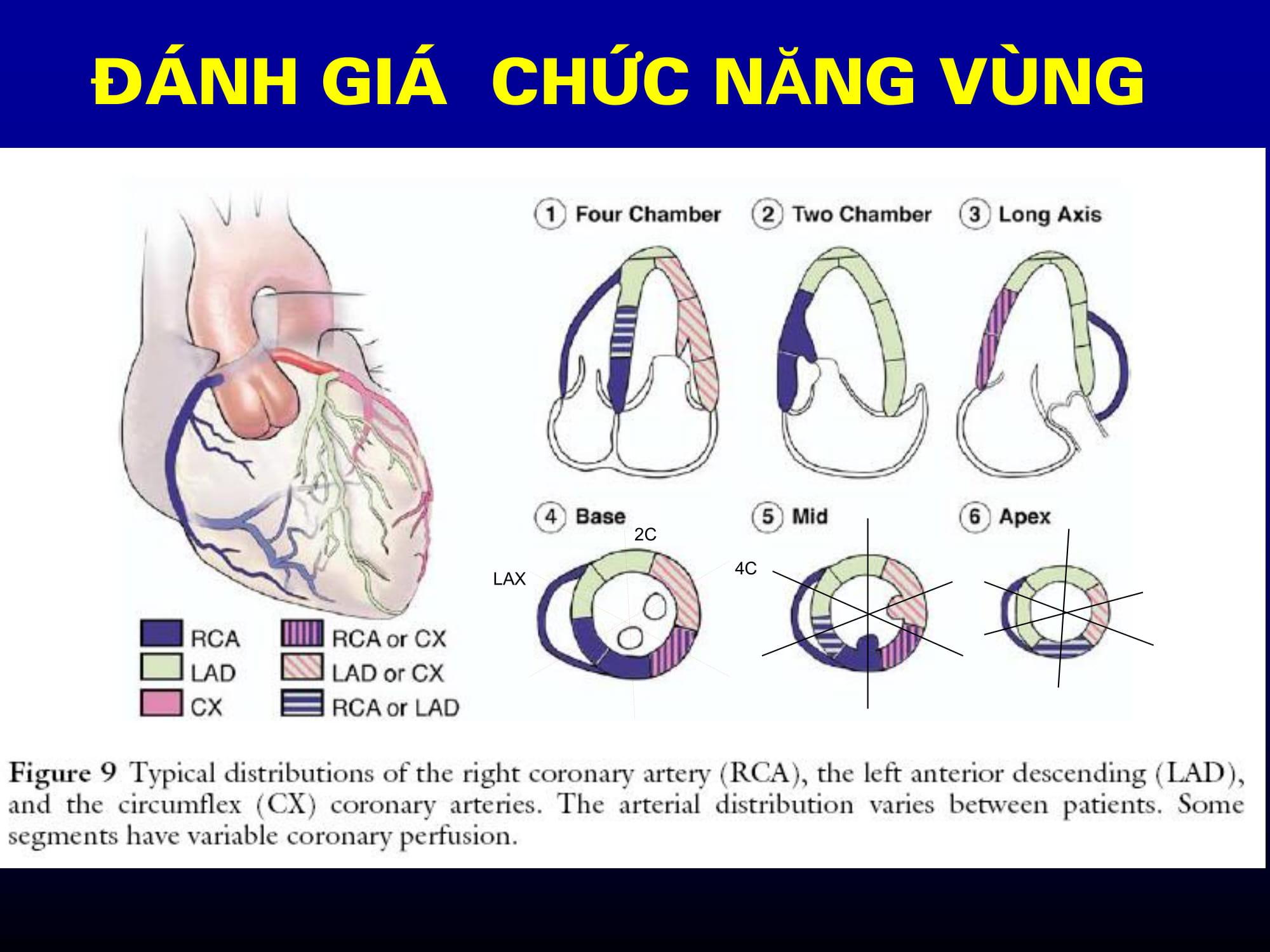Siêu âm tim Doppler màu trong nhồi máu cơ tim – TS. Nguyễn Thị Bạch Yến, Viện Tim Mạch Quốc gia