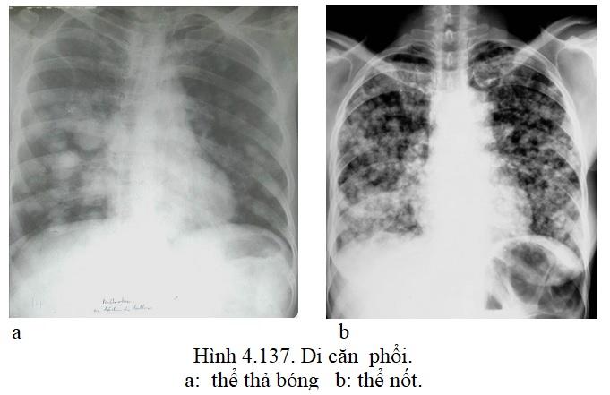 [Bộ Y tế] Chẩn đoán hình ảnh một số bệnh lý thường gặp trên phim chụp xquang lồng ngực