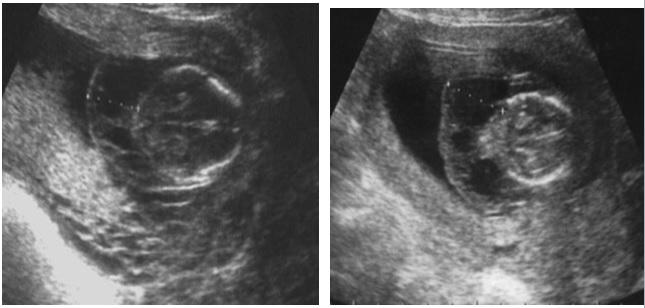 Dị dạng bạch mạch dạng nang và cách đánh giá trên siêu âm thai Doppler màu – PGS. Trần Danh Cường