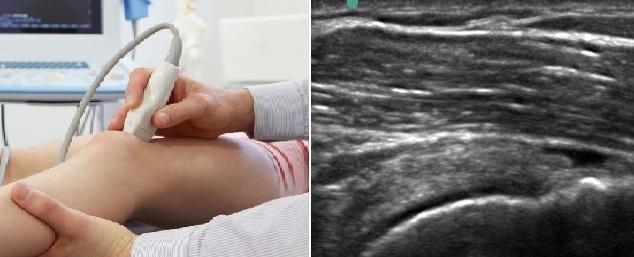 Trọn bộ tài liệu siêu âm cơ – khớp