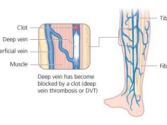 Tĩnh mạch xiên vùng cẳng chân
