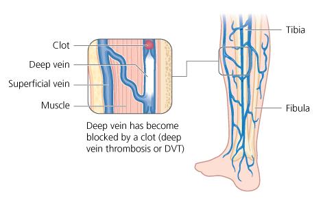Giải phẫu tĩnh mạch chi dưới ứng dụng trong siêu âm Doppler màu