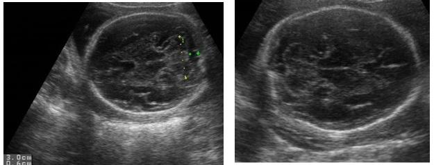Tính tuổi thai trên siêu âm – PGS. Trần Danh Cường