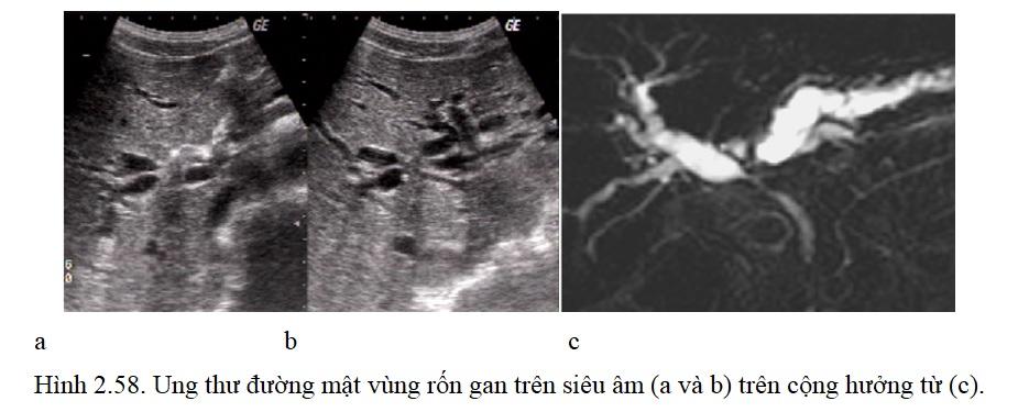 [Bộ Y tế] Chẩn đoán hình ảnh đường mật