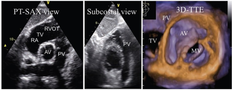 [PDF] Recommendations for the echocardiographic assessment of native valvular regurgitation – Khuyến cáo về đánh giá mức độ hở tất cả các van tim trên siêu âm tim Doppler màu.