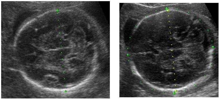 Đo kích thước đầu thai nhi trên siêu âm thực hành lâm sàng – PGS. Trần Danh Cường
