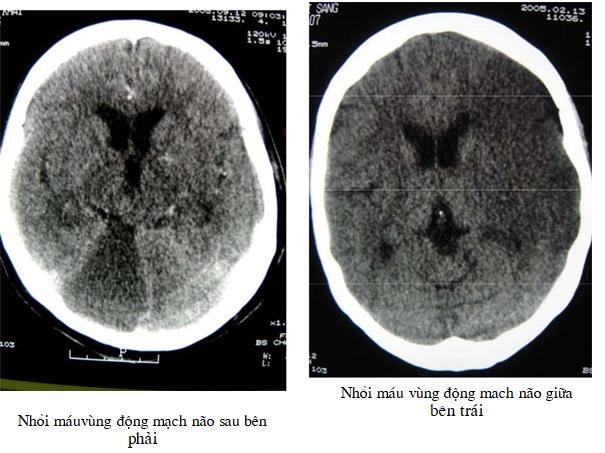 [Bạch Mai] Chẩn đoán cắt lớp vi tính nhồi máu não