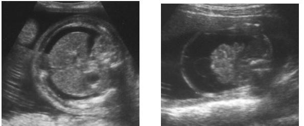 Chẩn đoán phù thai trên siêu âm – PGS. Trần Danh Cường