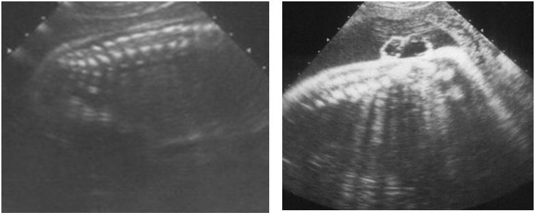 Chẩn đoán thoát vị cột sống trên siêu âm thai