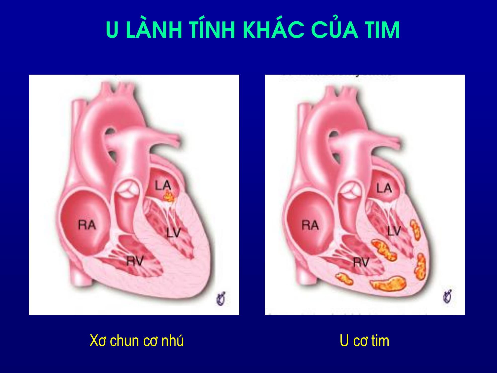 Siêu âm Doppler màu trong chẩn đoán khối u tim – PGS. Đinh Thu Hương, Viện Tim Mạch Bạch Mai