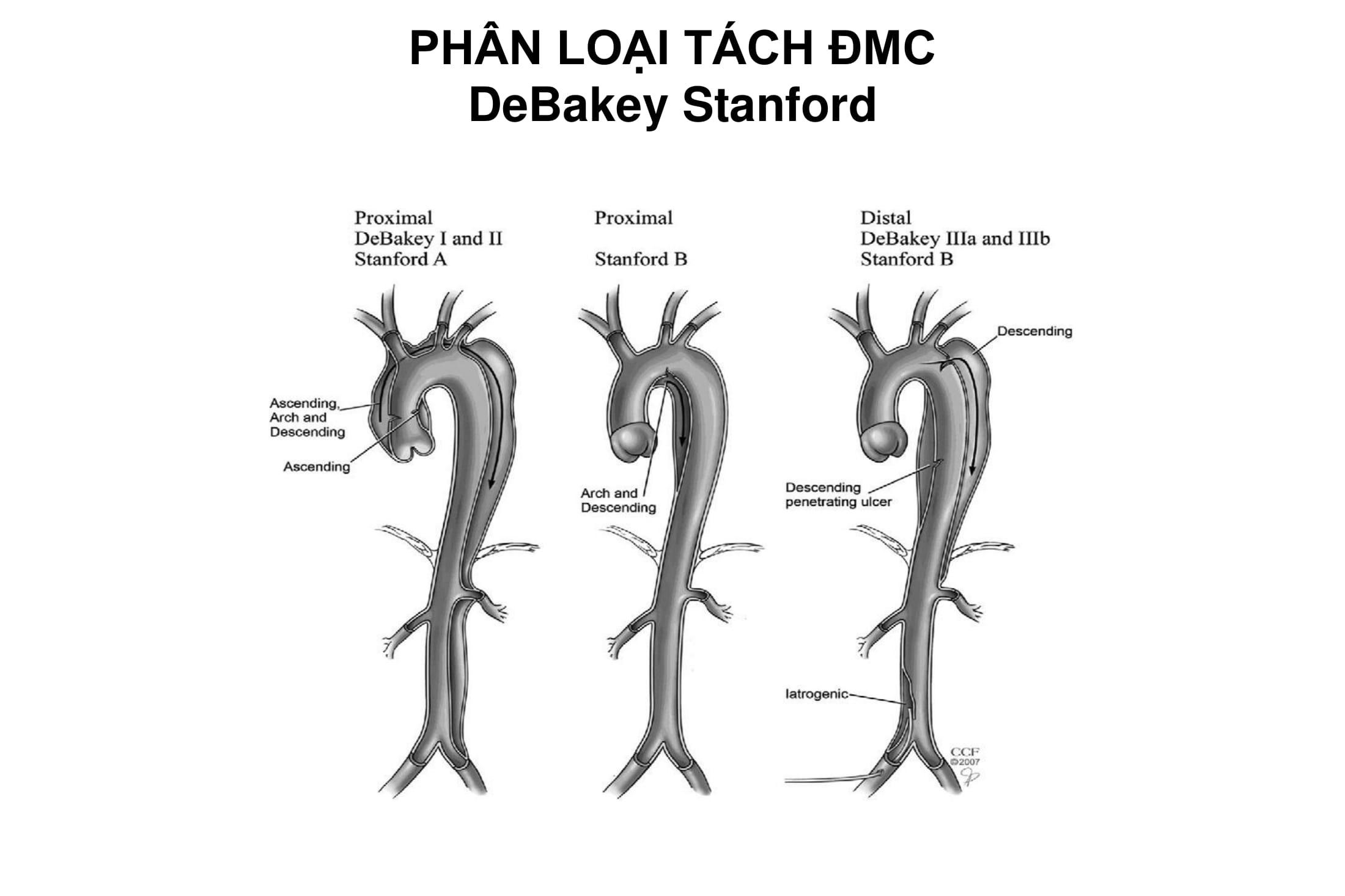 Siêu âm Doppler màu trong chẩn đoán bệnh động mạch chủ – PGS. Đinh Thị Thu Hương, Trường Đại học Y Hà Nội