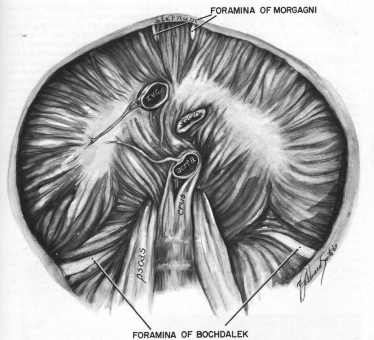 Hình ảnh chụp cắt lớp vi tính màng phổi, thành ngực và cơ hoành
