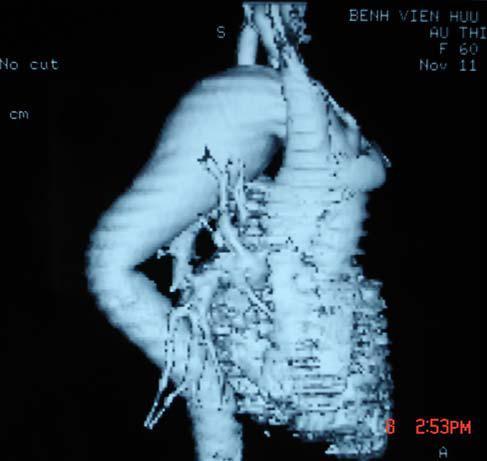 Hình ảnh và một số bệnh động mạch chủ trên phim chụp cắt lớp vi tính