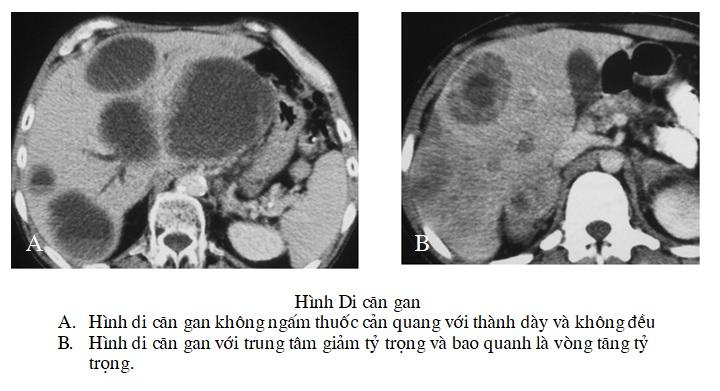 Chẩn đoán khối u gan ÁC TÍNH trên cắt lớp vi tính – PGS. Nguyễn Duy Huề Đại học Y Hà Nội