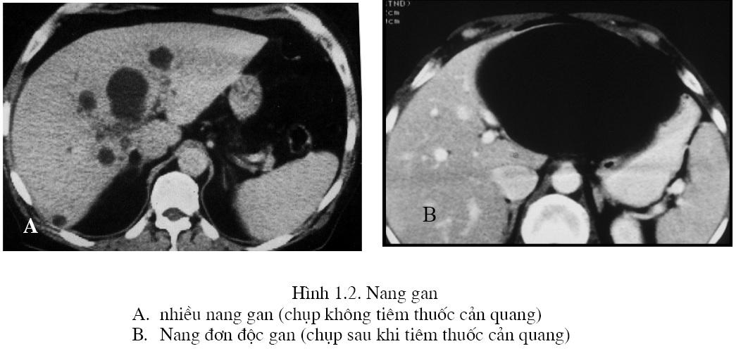 Chẩn đoán các khối u gan lành tính trên chụp cắt lớp vi tính – PGS. Nguyễn Duy Huề