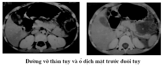 Chụp cắt lớp vi tính chấn thương tụy