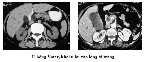 Hướng dẫn cắt lớp vi tính Ung thư tụy