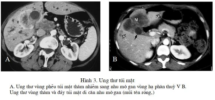 Chụp cắt lớp vi tính chẩn đoán các bệnh đường mật