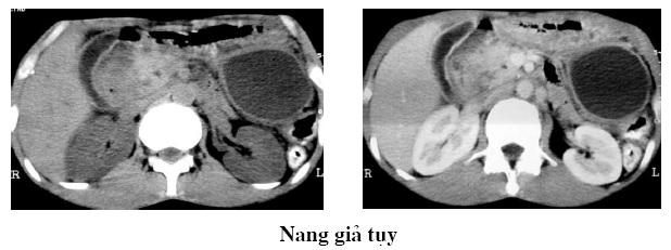 [Bạch Mai] Chụp cắt lớp vi tính bệnh viêm tụy cấp