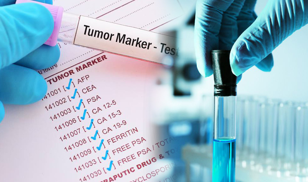 Top 65 dấu ấn ung thư được sử dụng phổ biến nhất tính đến năm 2019 – phần 1