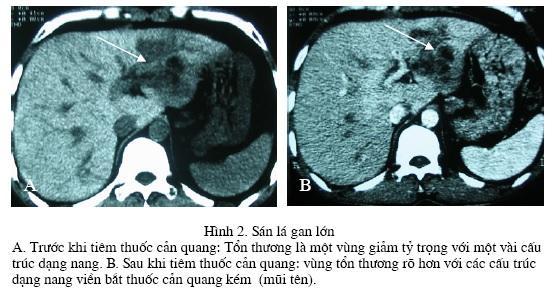 Chẩn đoán hình ảnh bệnh lý nhiễm trùng gan trên chụp cắt lớp vi tính – PGS. Nguyễn Duy Huề