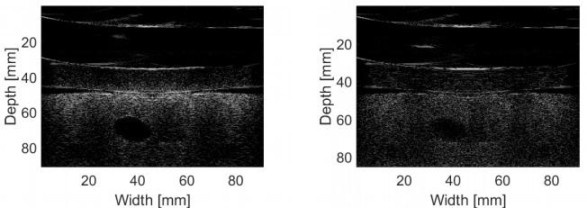 [VSUM2019] Hệ thống đồng bộ siêu âm và cộng hưởng từ