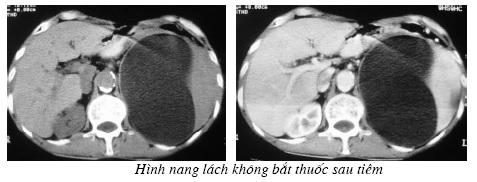 Chẩn đoán hình ảnh trên chụp cắt lớp vi tính lách