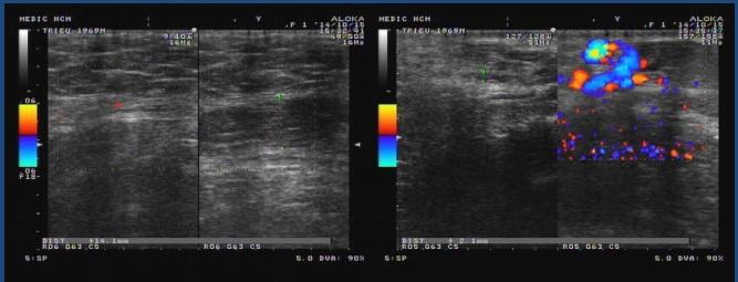 Một số ca lâm sàng siêu âm tinh hoàn Doppler màu