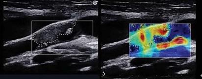 [PDF-online] Kỹ thuật siêu âm khảo sát mạch máu – Bs. Phan Thanh Hải