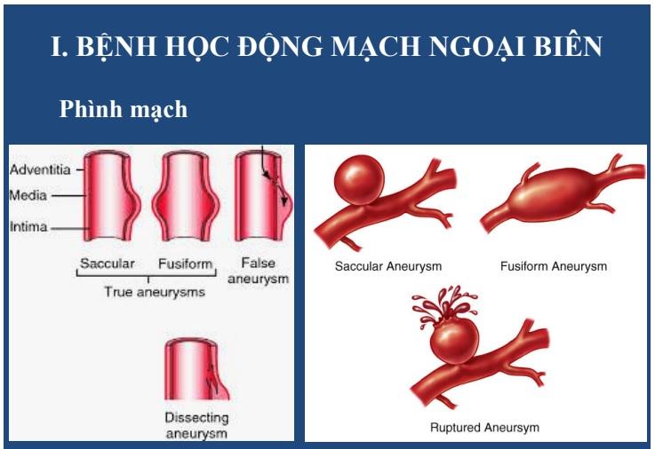 [PDF-online] Siêu âm mạch máu ngoại biên – Bs. Lê Thanh Liêm, trung tâm y khoa MEDIC