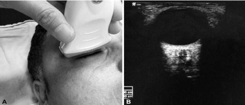 [VSUM2019] Siêu âm đo đường kính bao dây thần kinh thị trong theo dõi tăng áp lực nội sọ