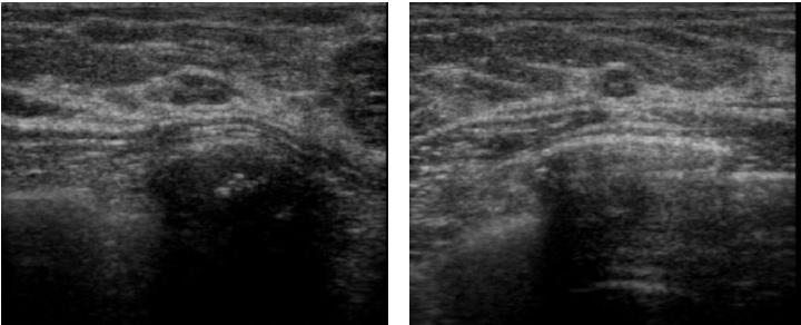 [VSUM2019] Cập nhật về phân loại BI-RADS trong siêu âm tuyến vú