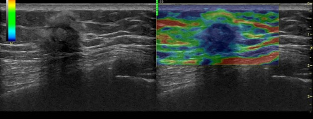 [VSUM2019] Những cạm bẫy trong siêu âm đàn hồi tuyến vú